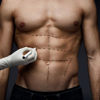Male Body With Lines Before Beauty Operation. Plastic Surgery
