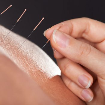 25045895 - close-up of a hand placing acupuncture needle on person's back