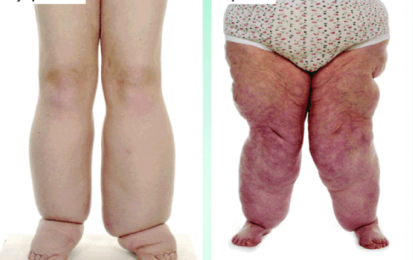 Helpful Info - What is Lipedema?